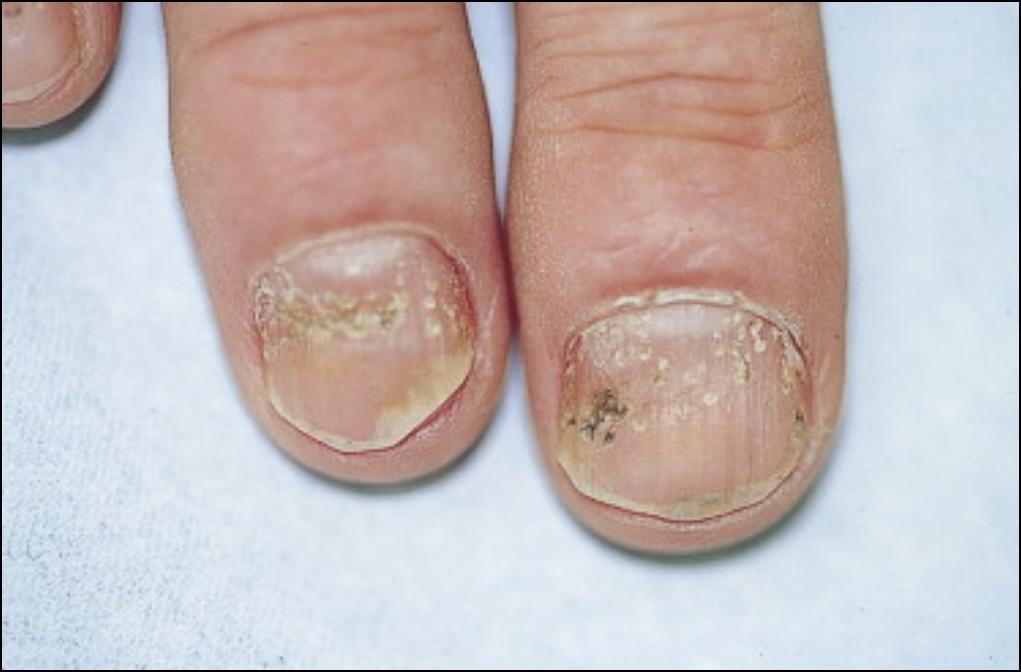 Affections onychologiques p dicure m dicale domicile - Coupe des ongles de pieds ...